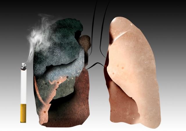 Ăn gì để phòng tránh bệnh ung thư phổi?
