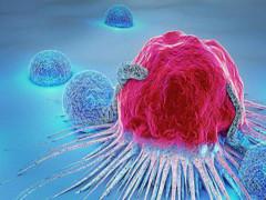 5 dấu hiệu cảnh báo bệnh ung thư nhiều người thường không ngờ tới