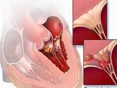 Thực hư thông tin 'virus lạ gây bệnh dịch viêm cơ tim'